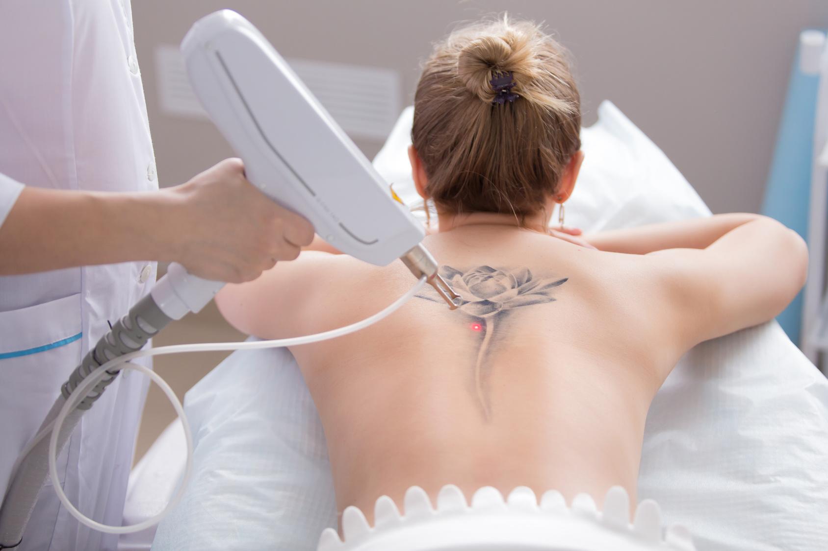 Jak Usunęłam Tatuaż Zabieg Usuwania Tatuażu Krok Po Kroku